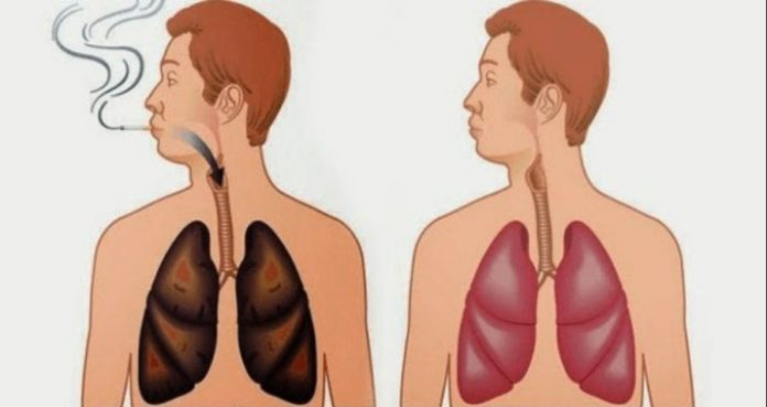 Lungs of Tar