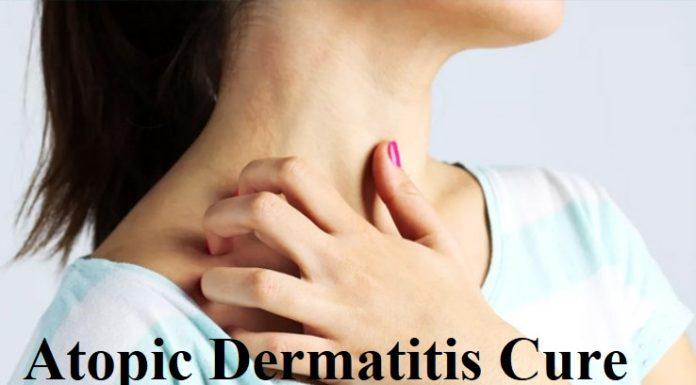 Atopic Dermatitis Cure