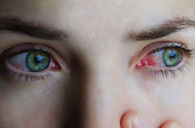 Allergy-Eyes-compressor