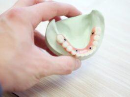 Dental Restorations